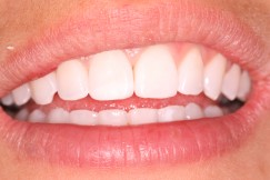 chipped_tooth_after