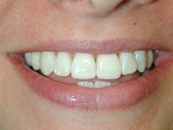 Eroded Front Teeth After