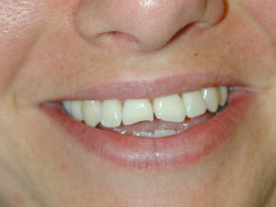 Eroded Front Teeth Before