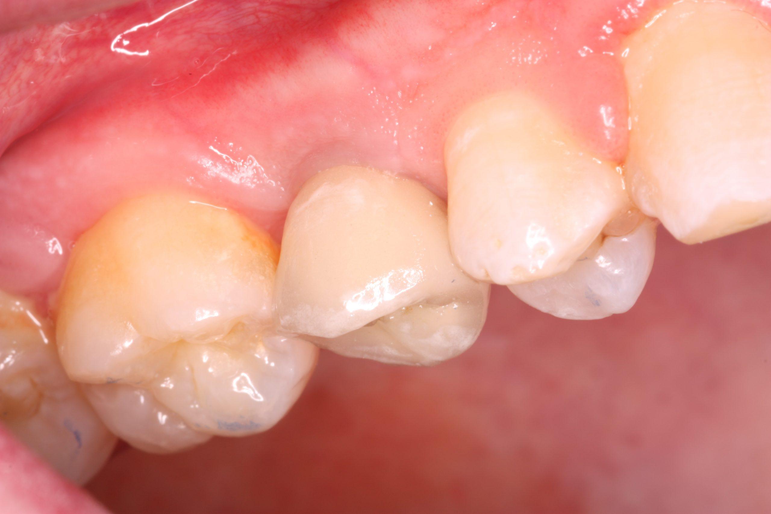 B2 Missing pre molar after_beechwood dental