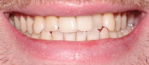 C2 Upper front teeth replaced_beechwood Dental