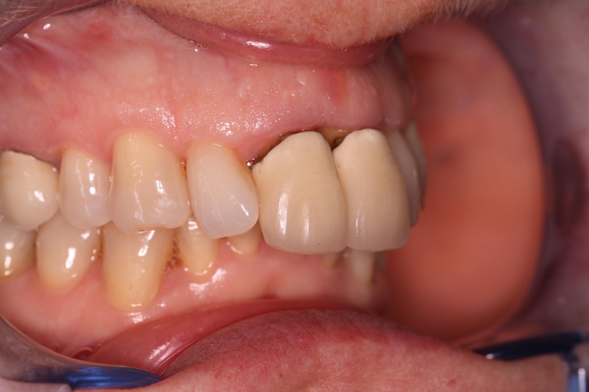 D1 Before_beechwood dental_best dentist dublin