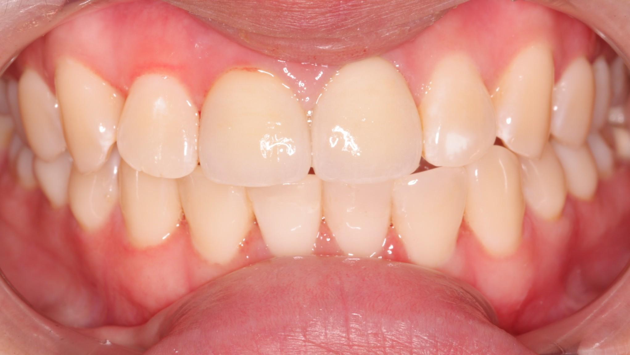 F2 Before_Beechwood dental_best dentists dublin