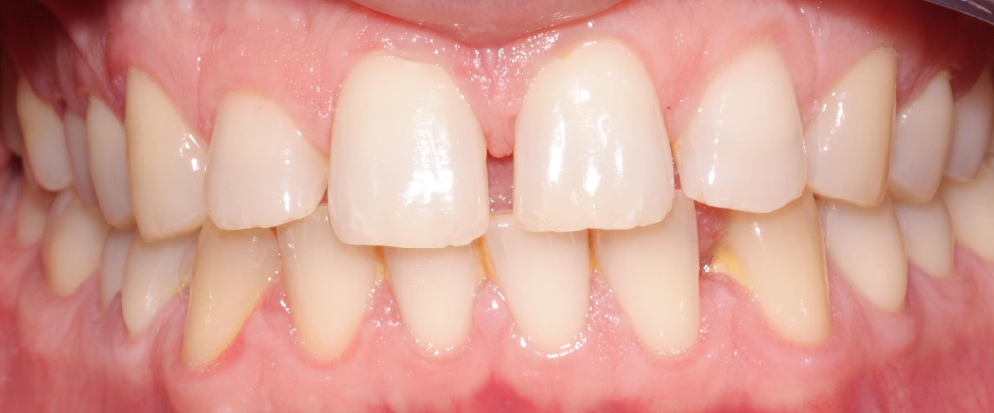 G1 Before Beechwood Dental_best dentist dublin