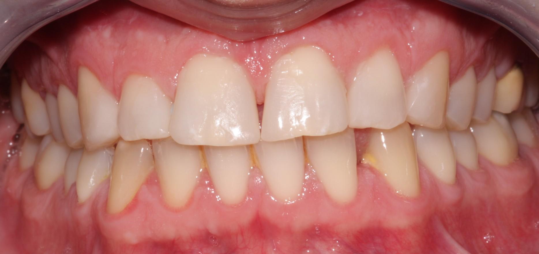 G2 Before Beechwood Dental_best dentist dublin