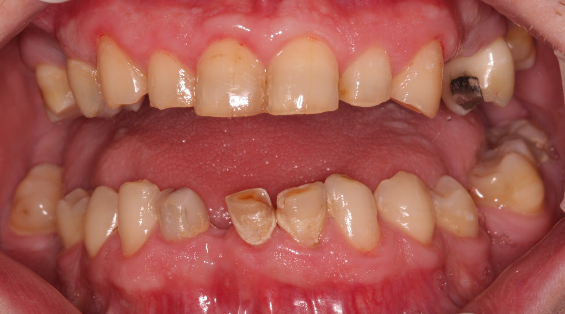 J1 _Beechwood Dental best dentist dublin