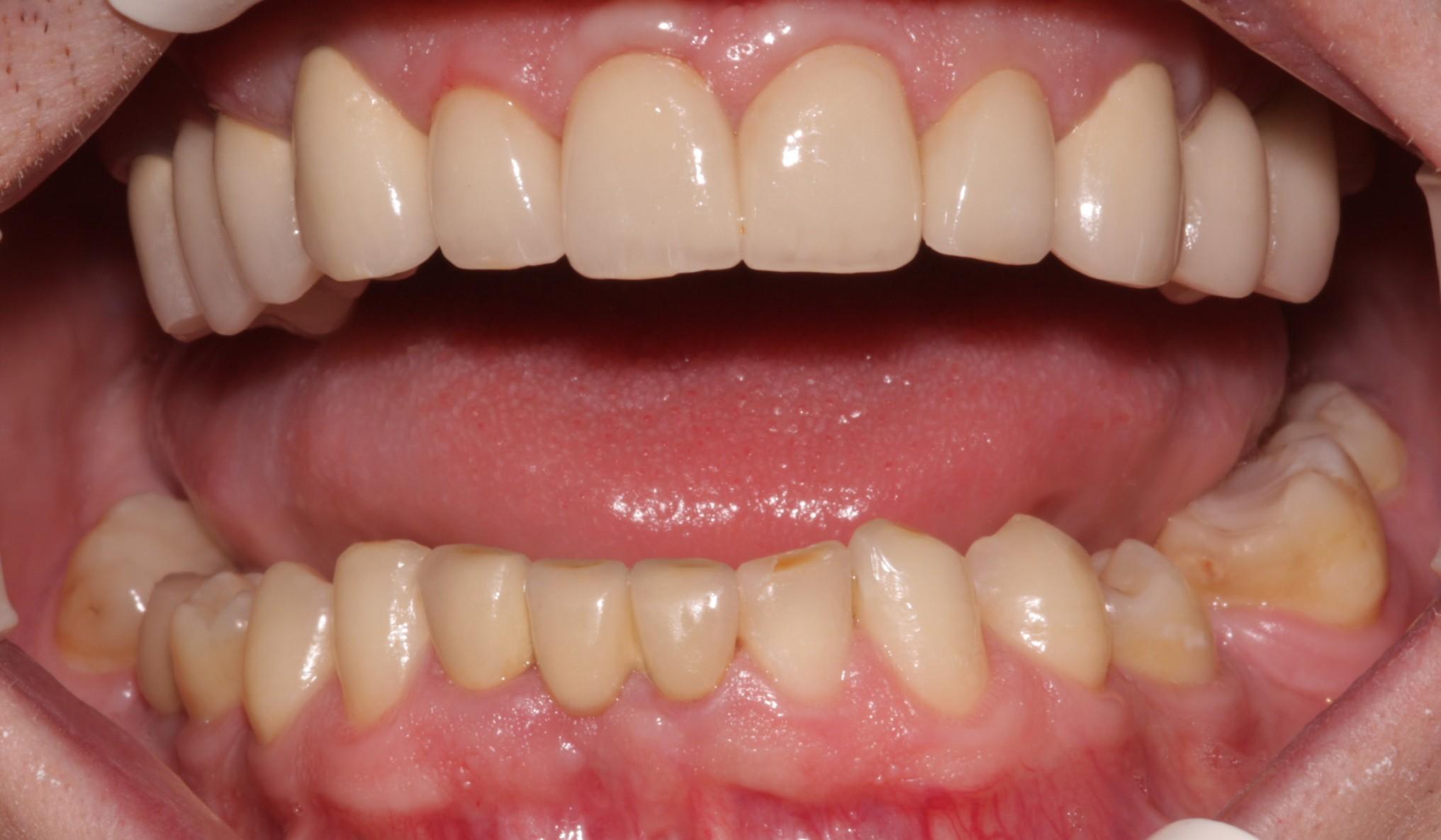 J2 _Beechwood Dental best dentist dublin