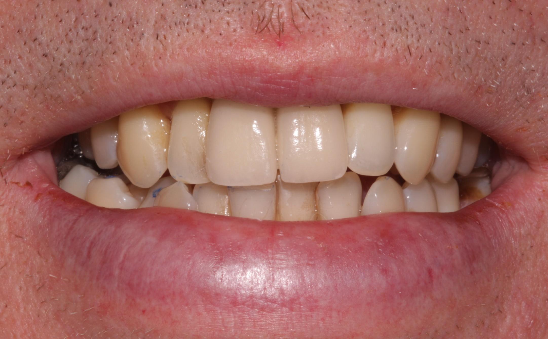 K2_beechwood dental_best dentist dublin