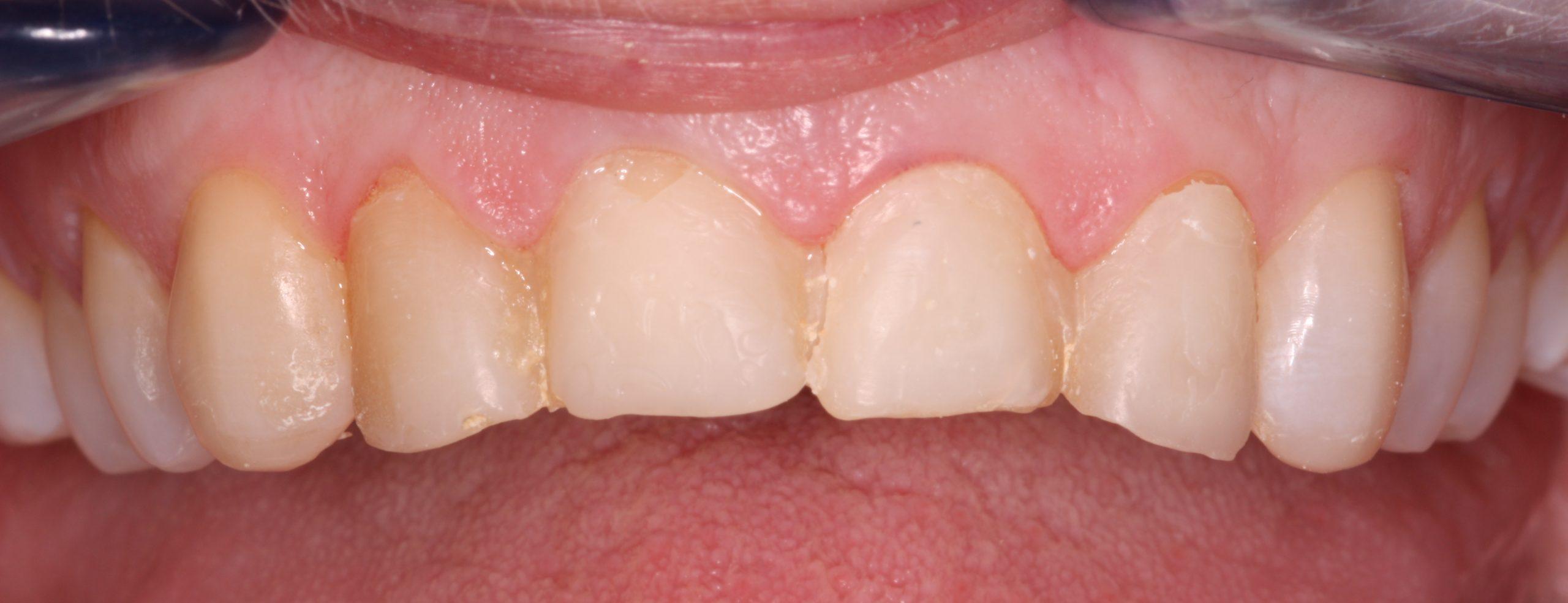 N1_beechwood dental_best dentist dublin