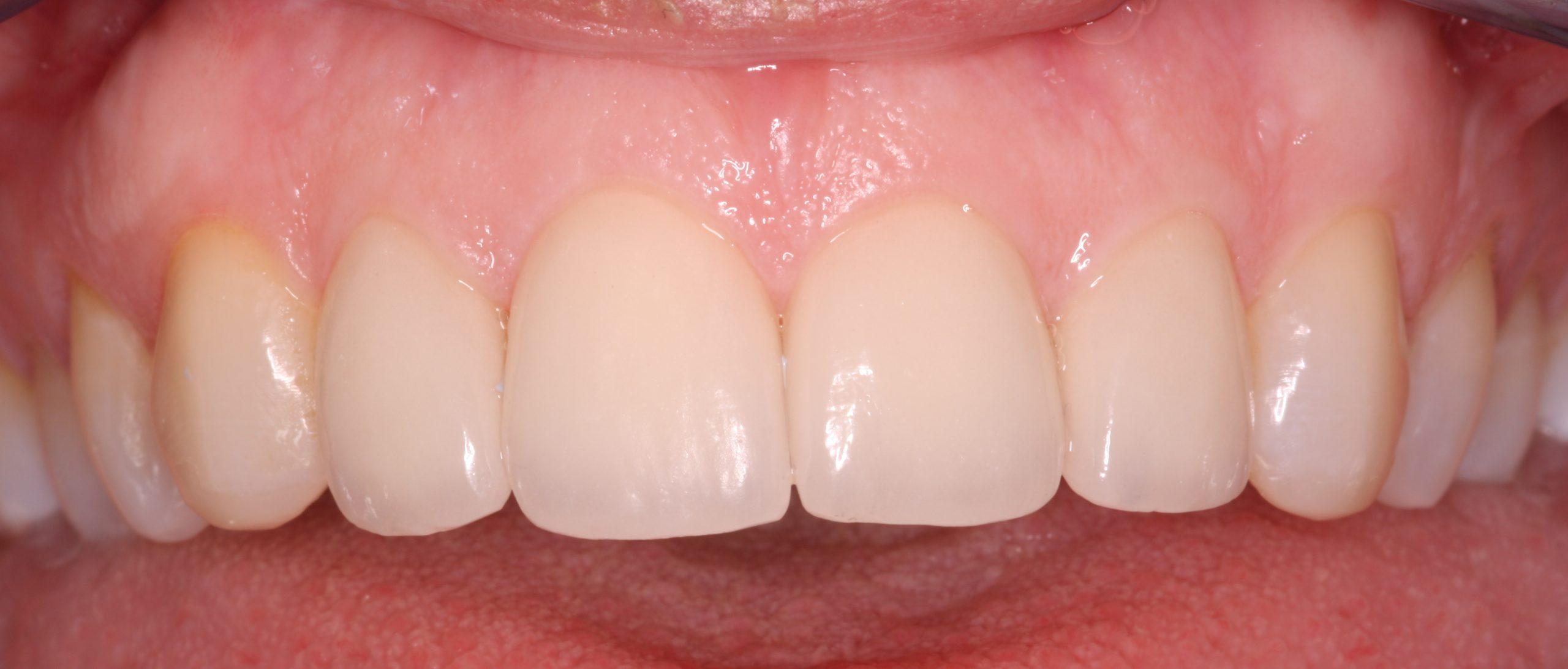 N2N1_beechwood dental_best dentist dublin