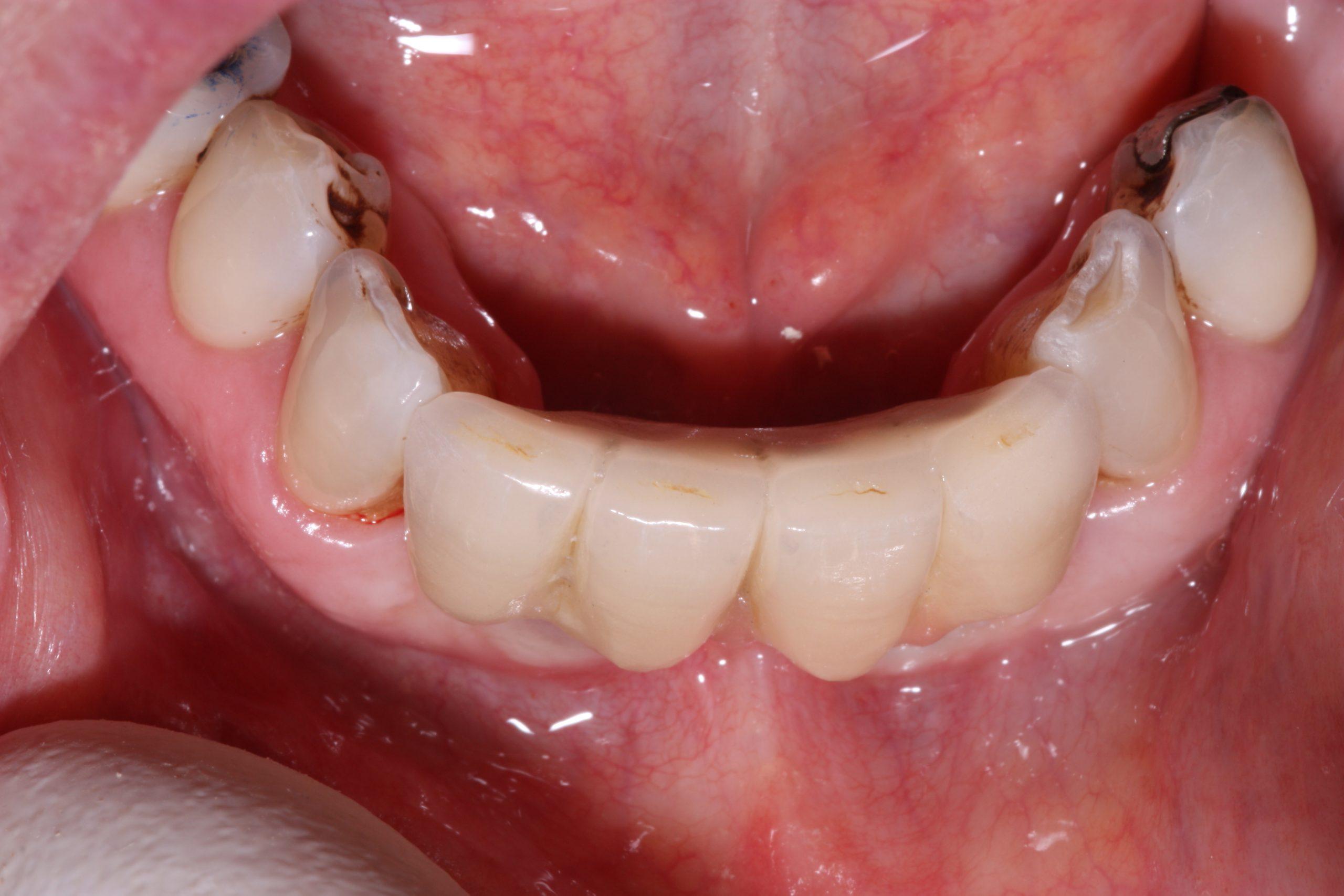 O2 Beechwood Dental_best dentist dublin