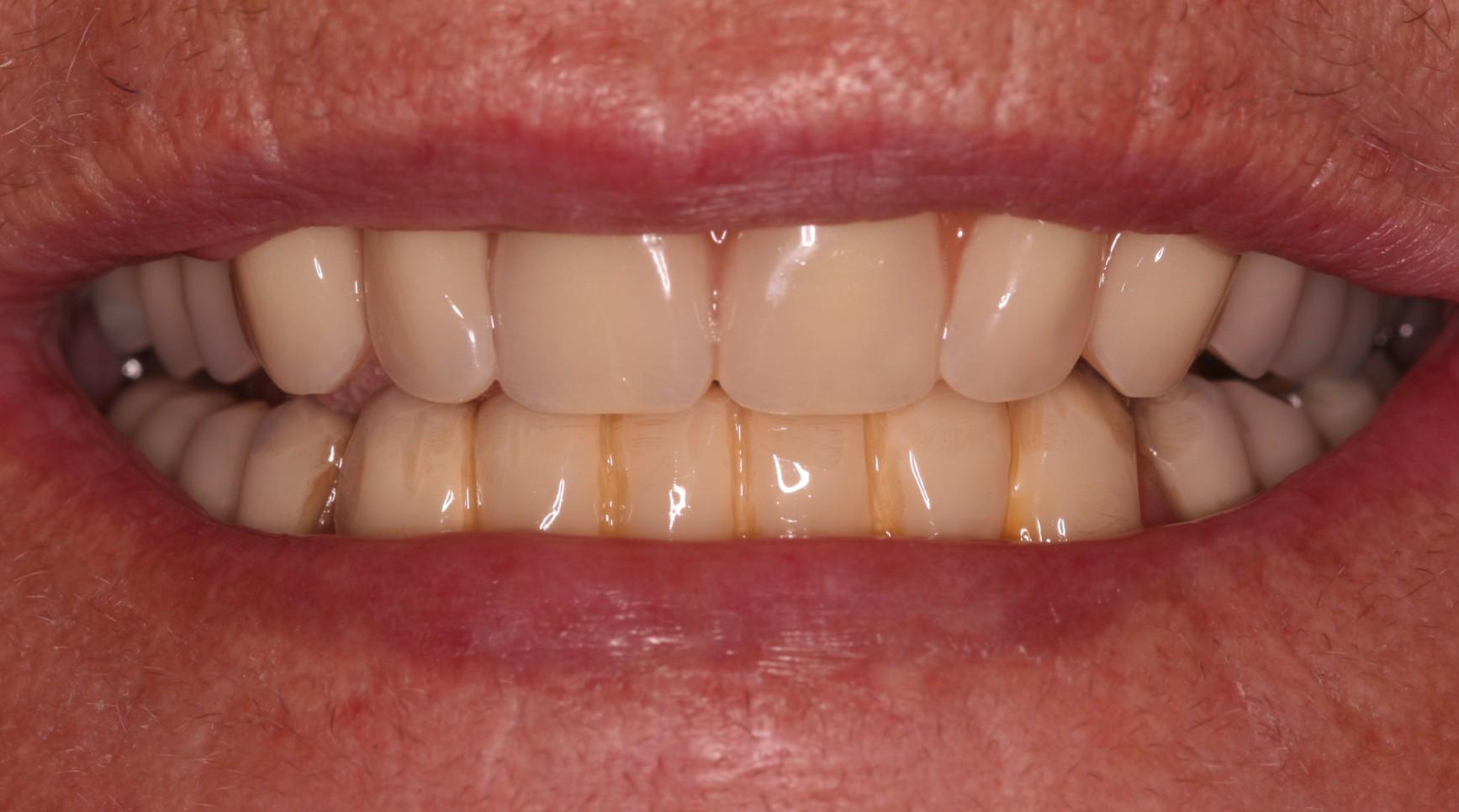 U2 Beechwood Dental_best dentist Dublin