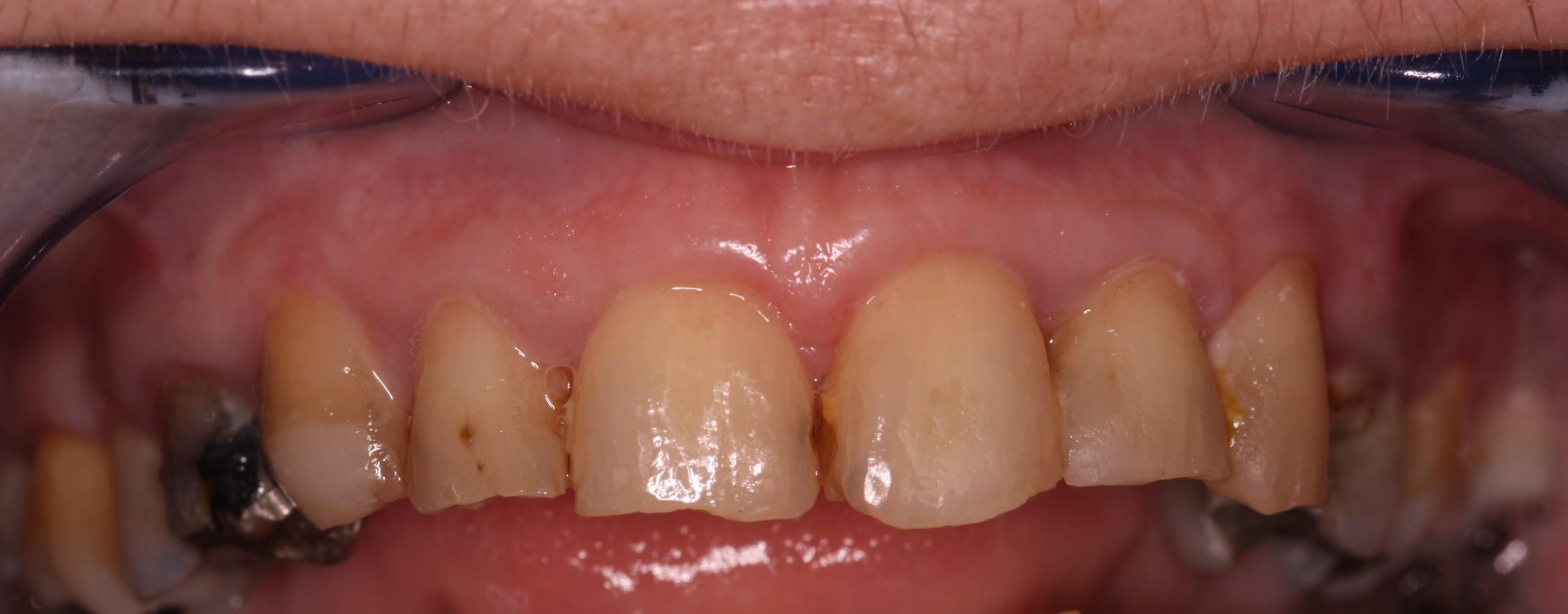 V1 Beechwood Dental_best dentist Dublin