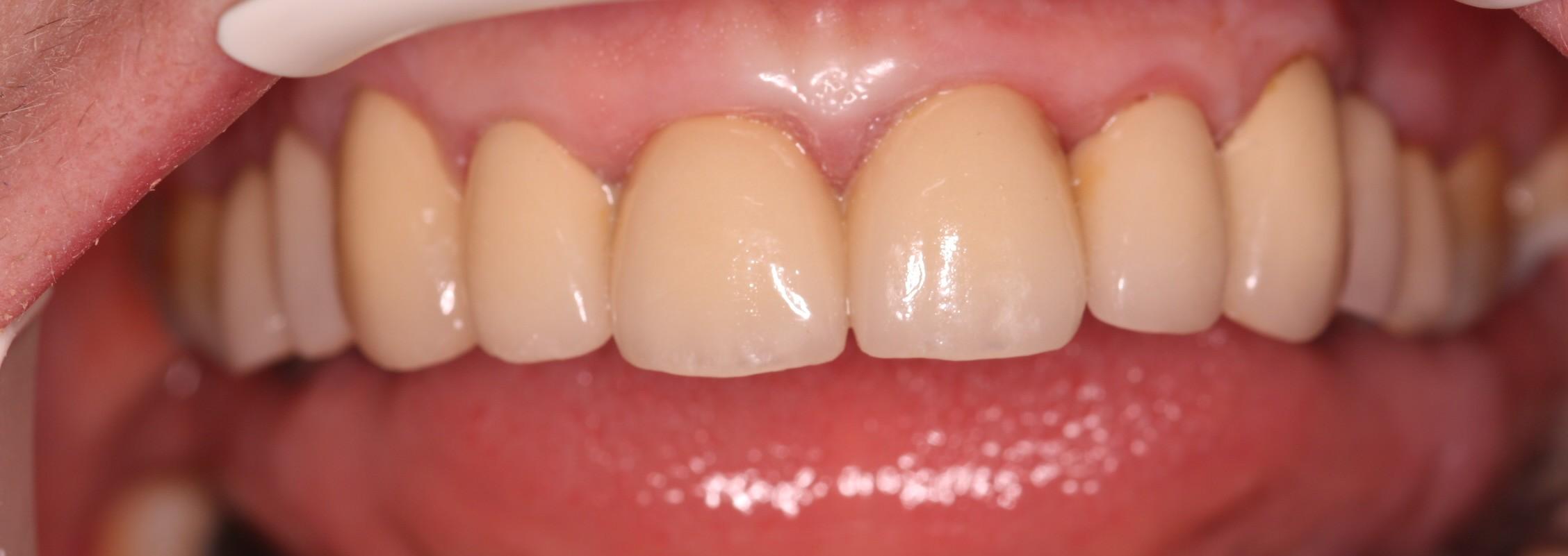 V2 Beechwood Dental_best dentist Dublin