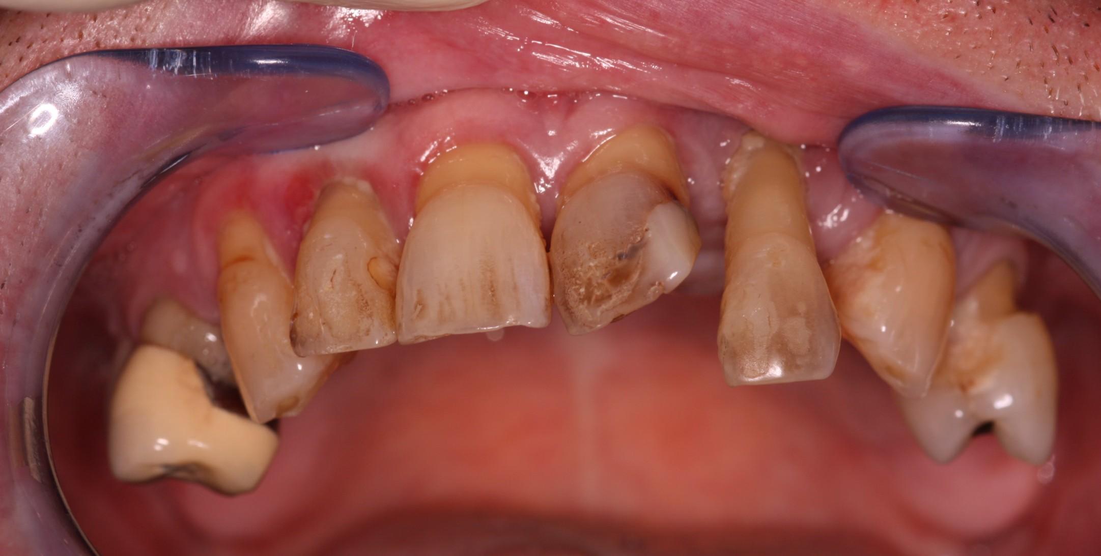 W1 _Beechwood Dental_best dentist Dublin
