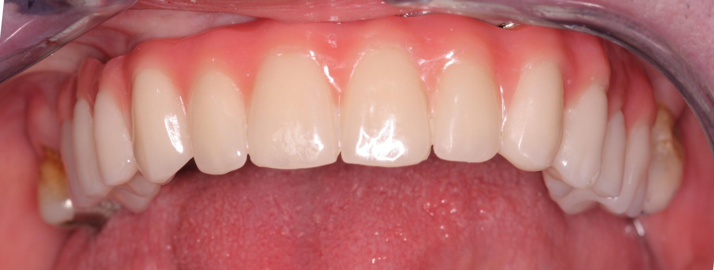 W2_Beechwood Dental_best dentist Dublin