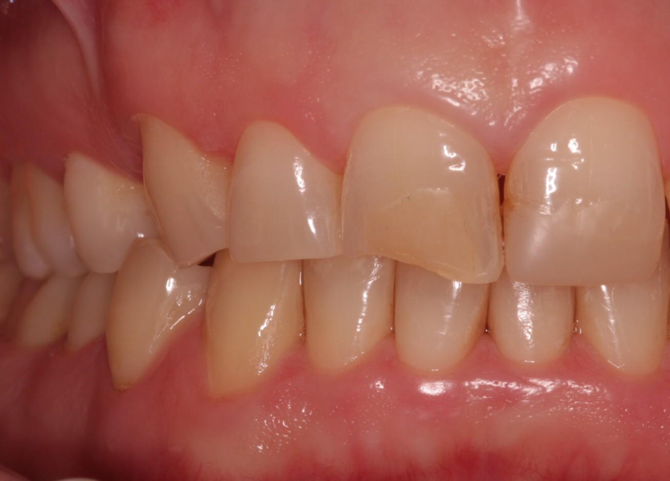 Z1 Beechwood Dental_best dentist Dublin