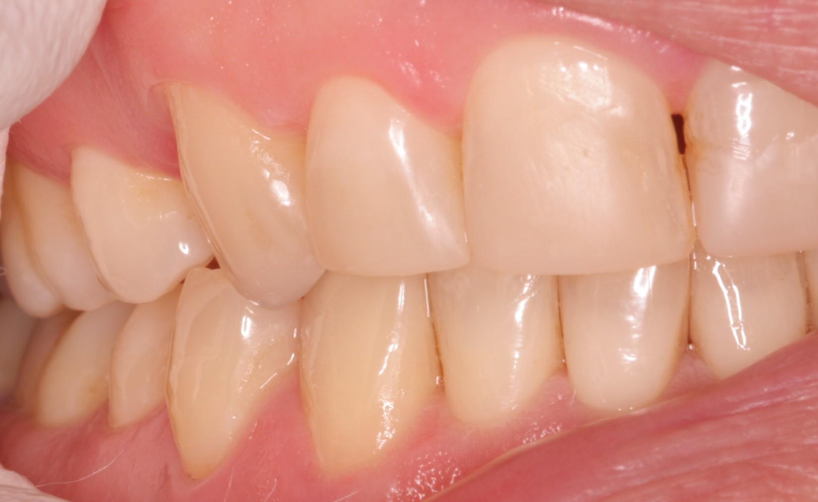 Z2 Beechwood Dental_best dentist Dublin